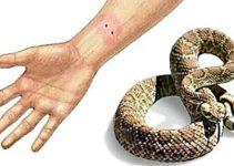 Picada de Cobra, Escorpião ou de Aranha – E agora?
